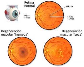 Degeneraciones retinianas Oftalmología