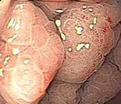 Gastritis no erosiva Gastroenterología