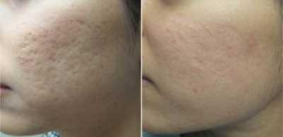 Cicatrices ¿Cómo borrar esas huellas en la piel? Dermatología