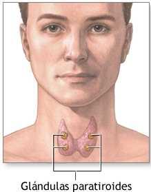 Adenoma paratiroideo Glosario Médico