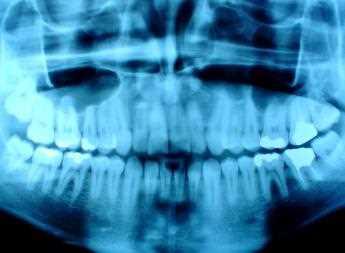 Los rayos-X dentales pasan a la fase digital Odontología