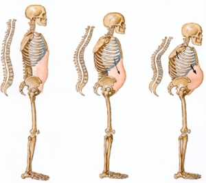 Osteopenia: A tiempo de prevenir la osteoporosis Reumatología