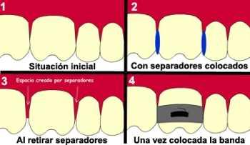 Los separadores dentales pueden ayudar a que los dientes permanentes crezcan rectos Odontología