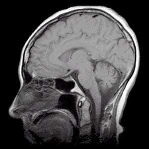 Atentos a los golpes en la cabeza Pediatría