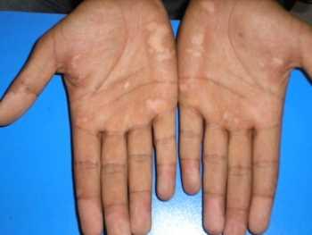 Luz UVB banda angosta: Efectivo tratamiento contra el vitiligo Dermatología