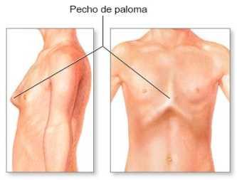 Que es el Pectus carinatum Pediatría