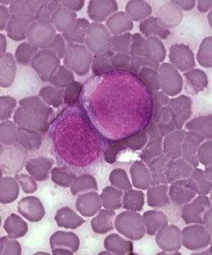 Agranulocitosis Adquirida Glosario Médico