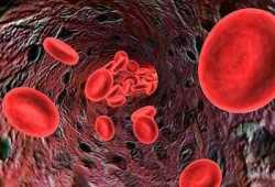 Anemia Ferropenica Nutrición y Dietética