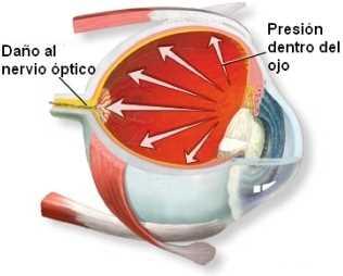 Glaucoma y gotas oculares Oftalmología