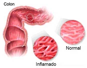 Intestino irritable Gastroenterología
