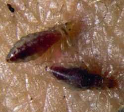 Pediculosis, piojos en la cabeza Dermatología