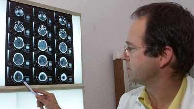 Recuperarse de un ictus: las nuevas tecnologías como principales aliadas Neurología